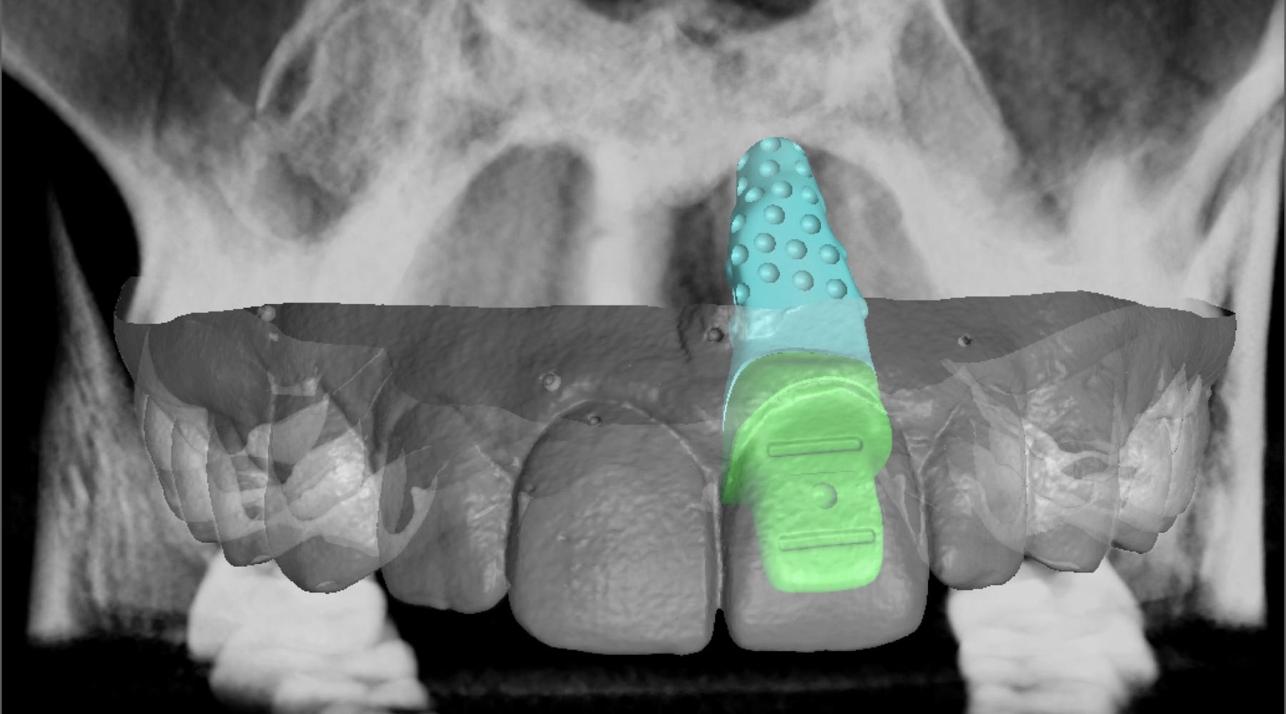 x-ray analysis of the implant insertion