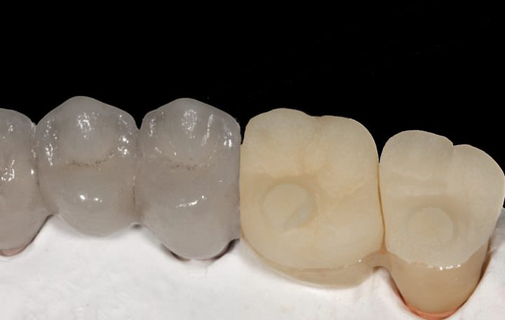 Preventing Ceramic Chipping in Dental Restorations