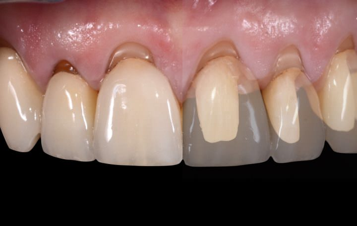 Soft Tissue Regeneration for Dental Restorations
