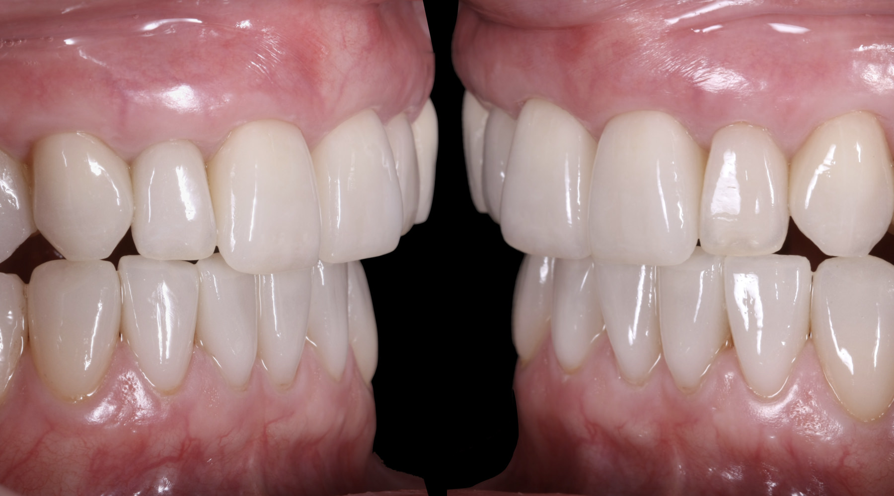 Gingival recession surgery - Results