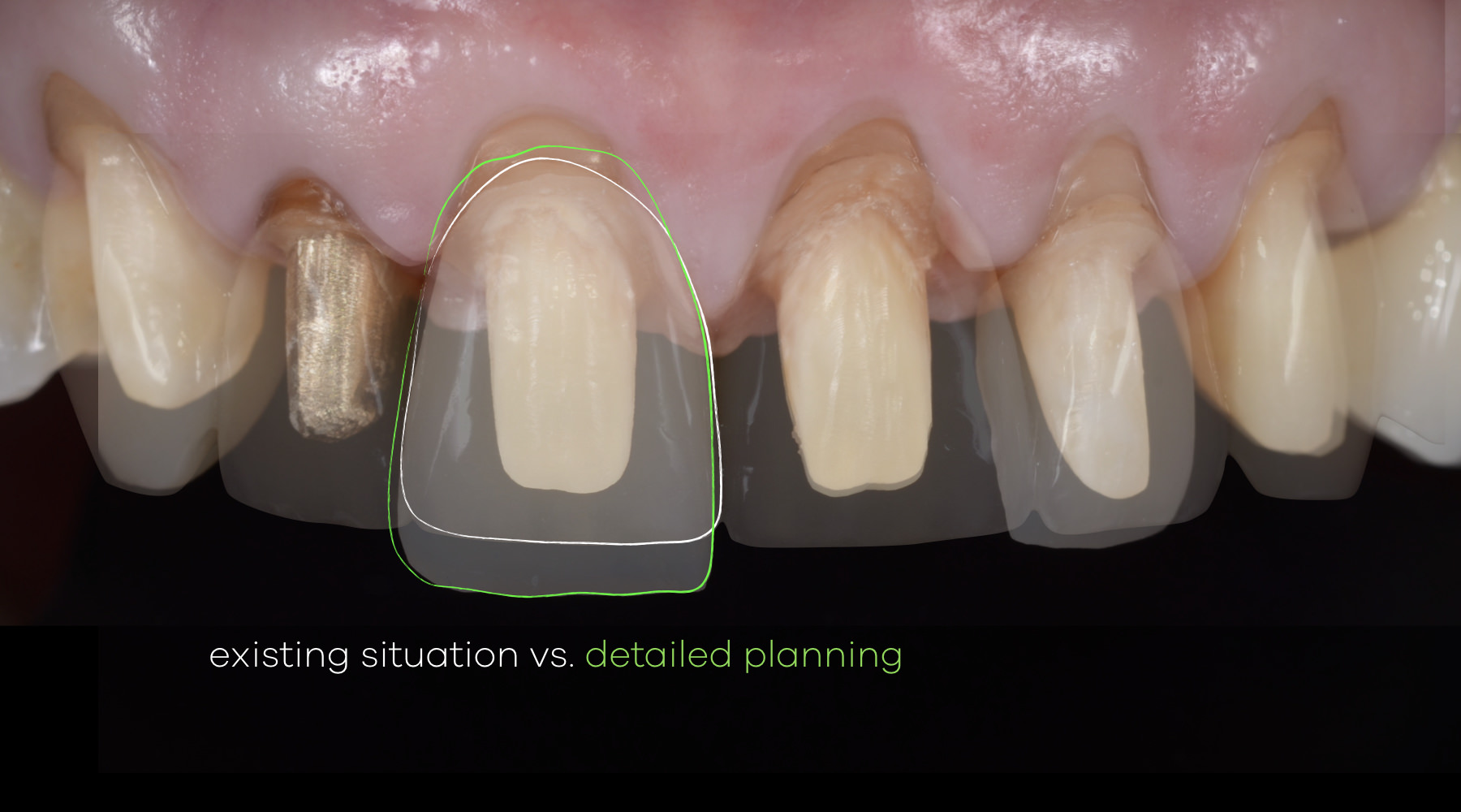 Gingival Recession Treatment - Evaluation and Planning