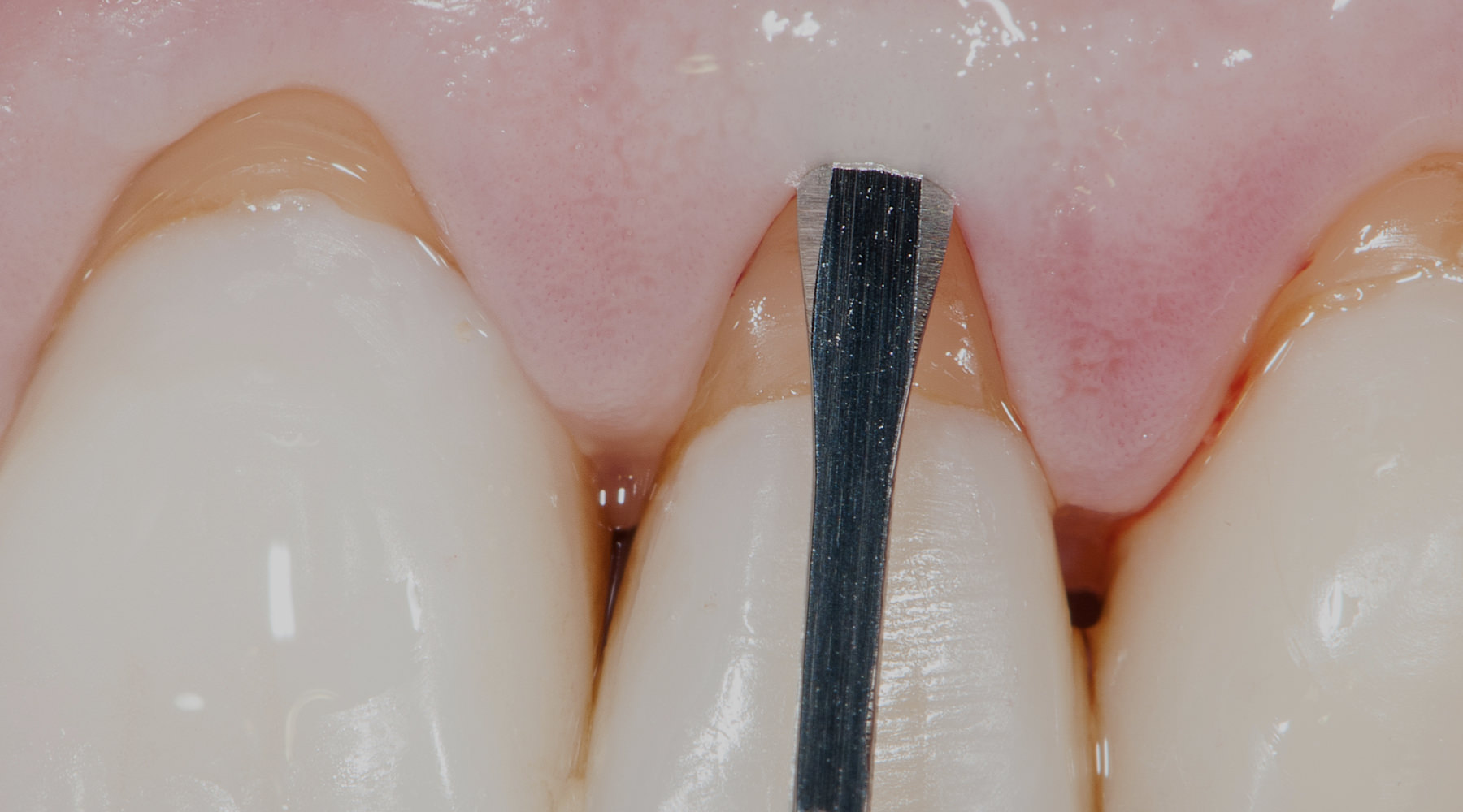 Gingival Recession Treatment - Partial dissection