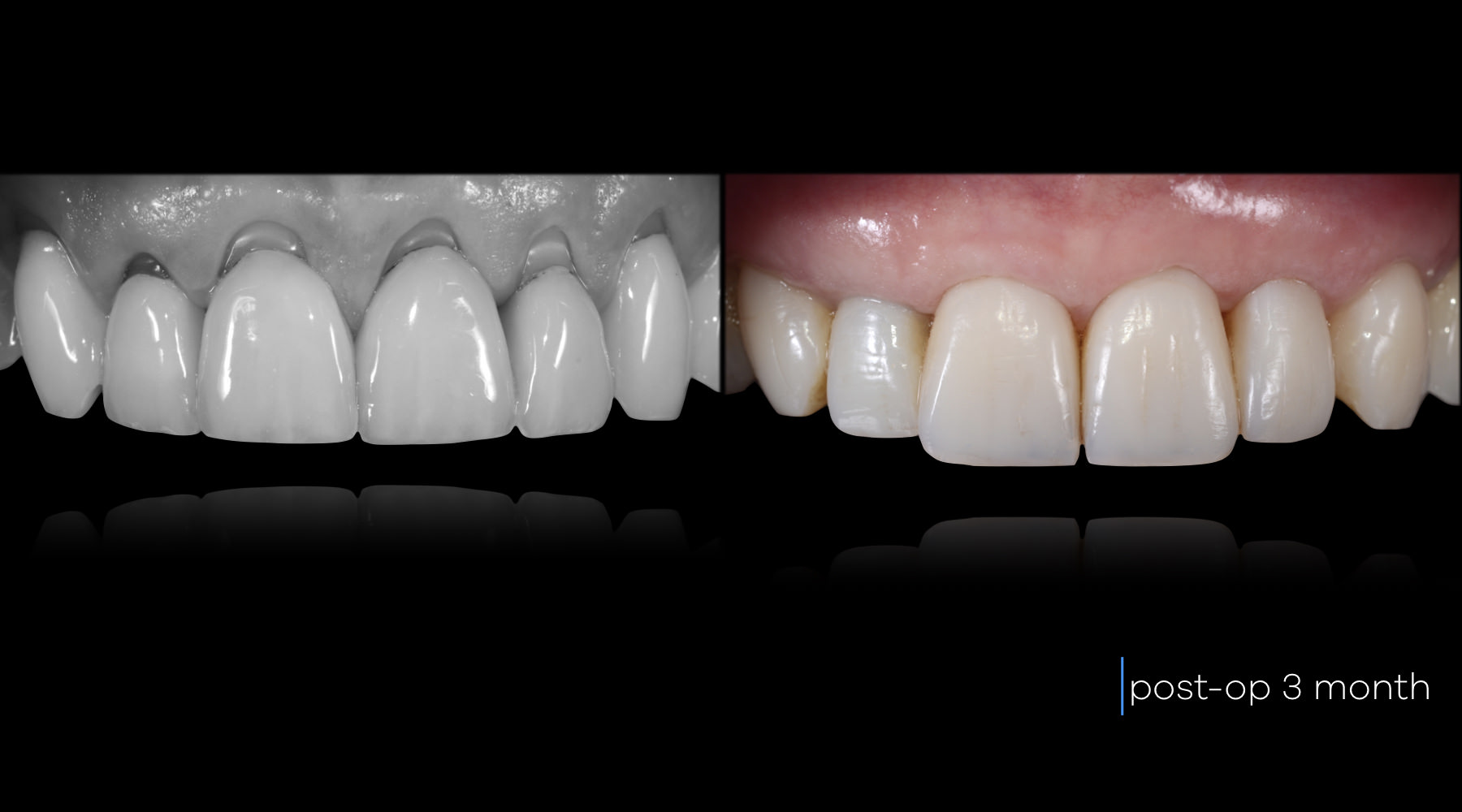 Gingival recession surgery - Before and after