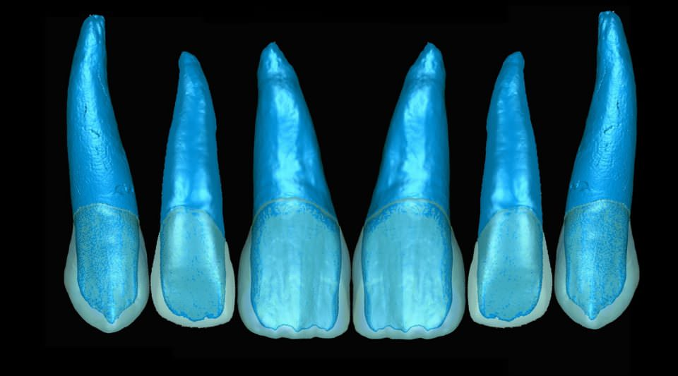 Digitally Produced Dentin Cores for Multilayer Anterior Restorations