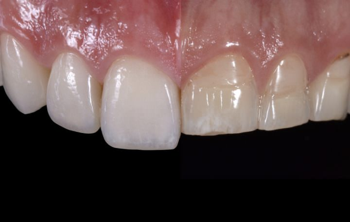 Dental Restoration Step by Step