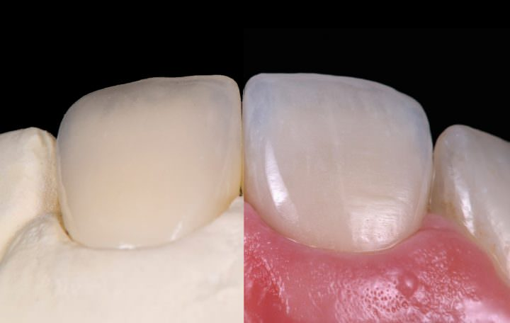 Ceramic Veneer (Anterior Dental Restoration)