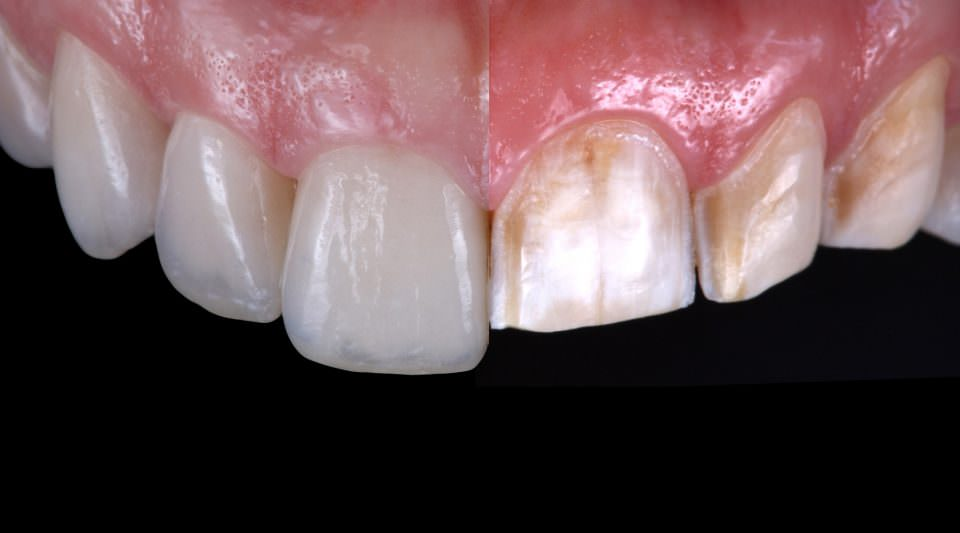 Porcelain veneers and CAD:CAM polymer restorations for amelogenesis imperfecta