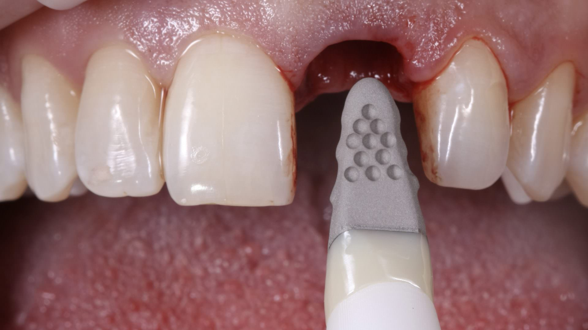 Inserting the implant