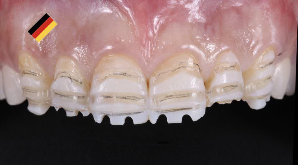 Veneers und Onlays als Behandlung bei Zahnhartsubstanzverlust