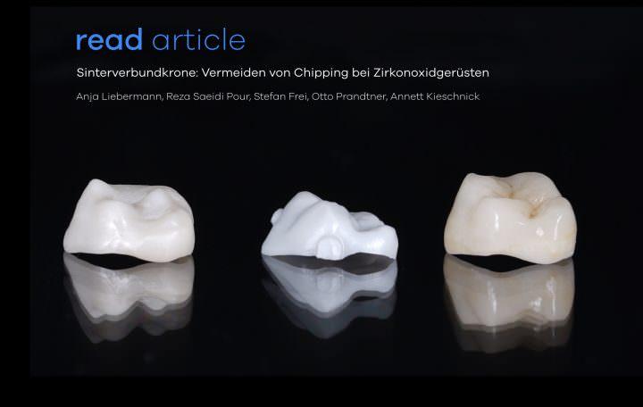 Sinterverbundkronen zur Vermeidung von Brüchen bei Keramikgerüsten
