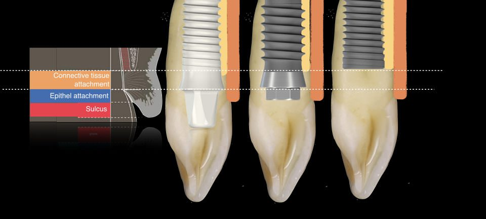 metal-free implant-supported single-tooth restorations