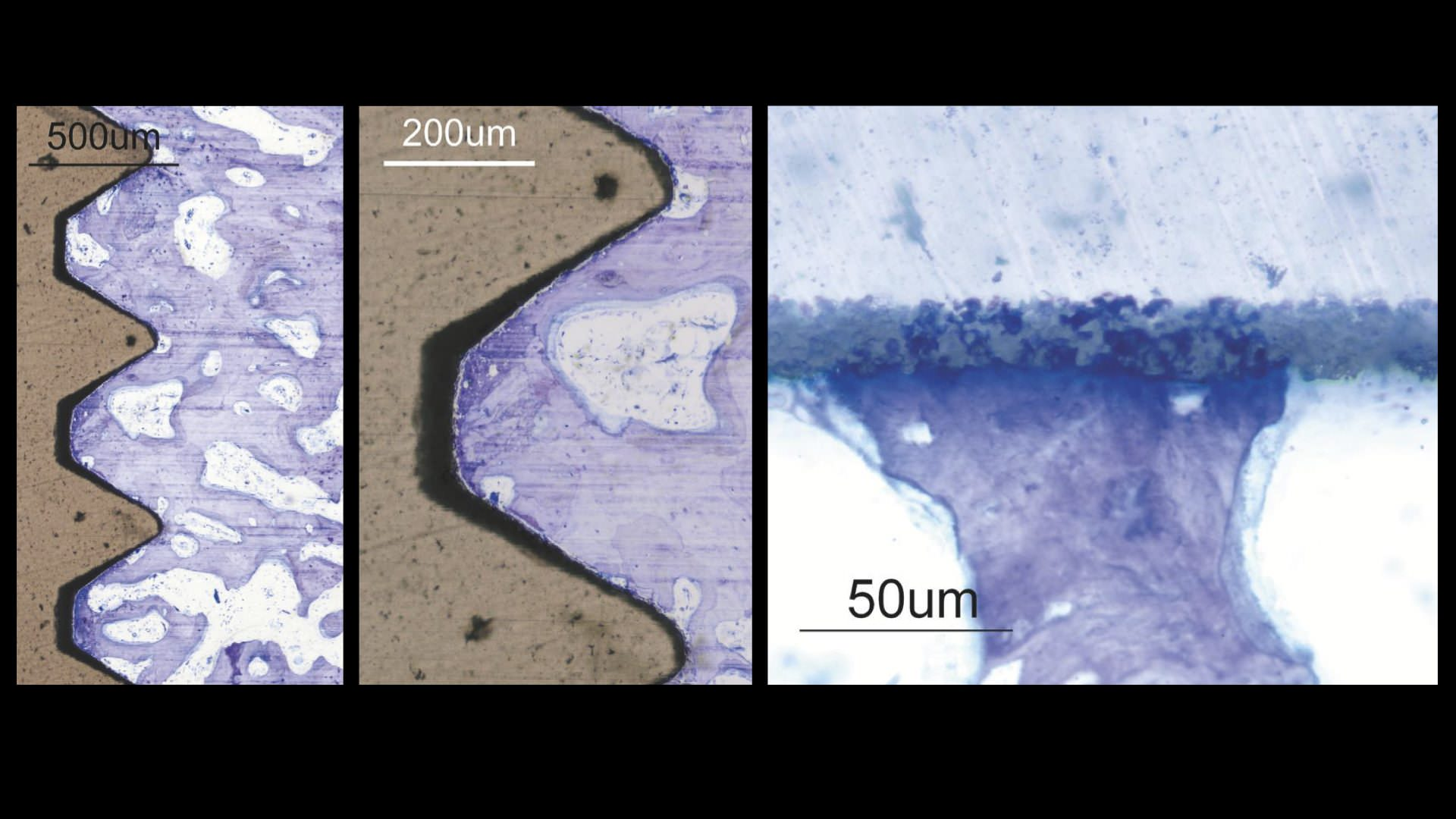 Histology for the Nobel Biocare Implant made of Zirconia Ceramic