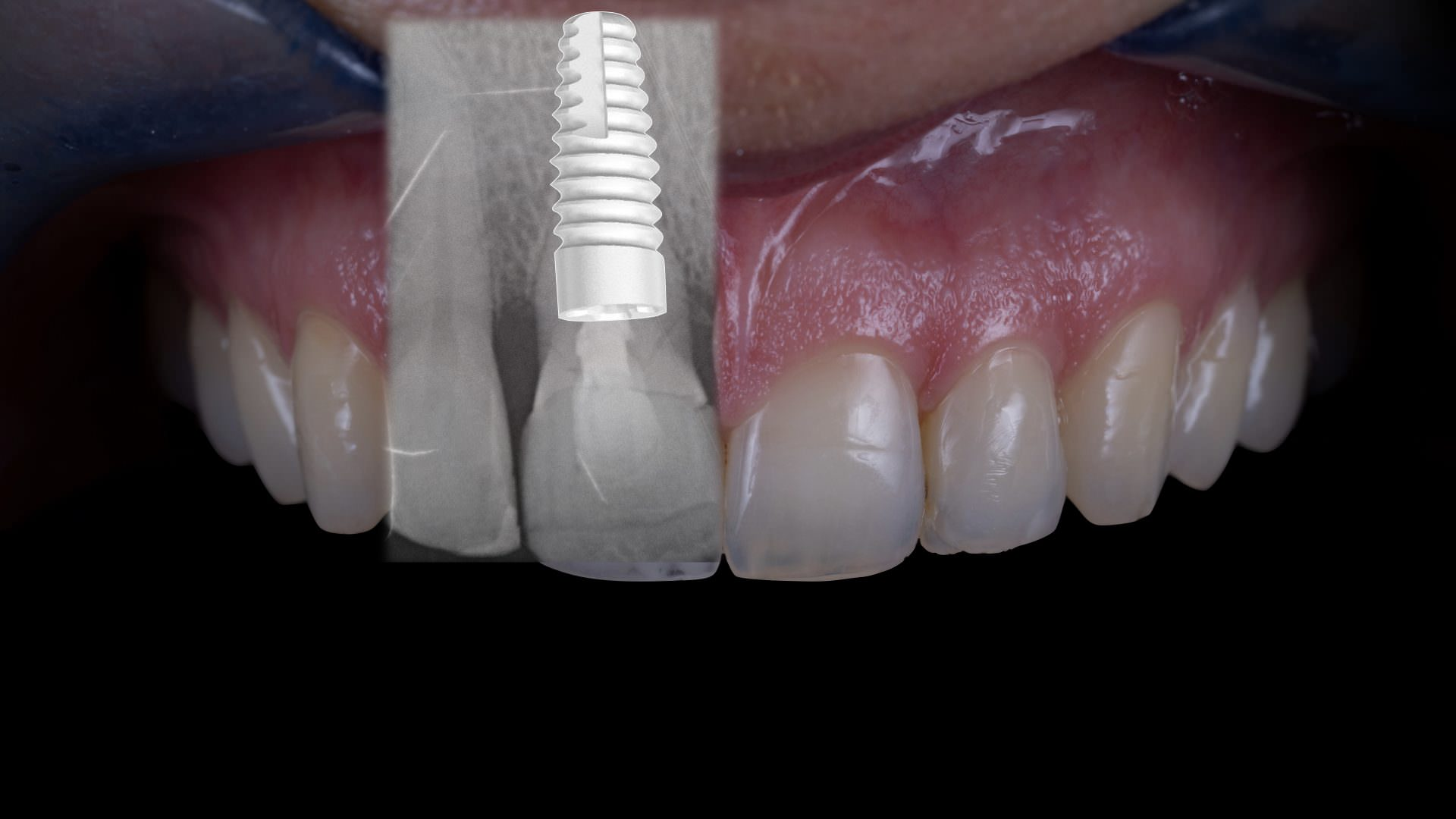 Two stage implantation with the Nobel Biocare Dental Implant