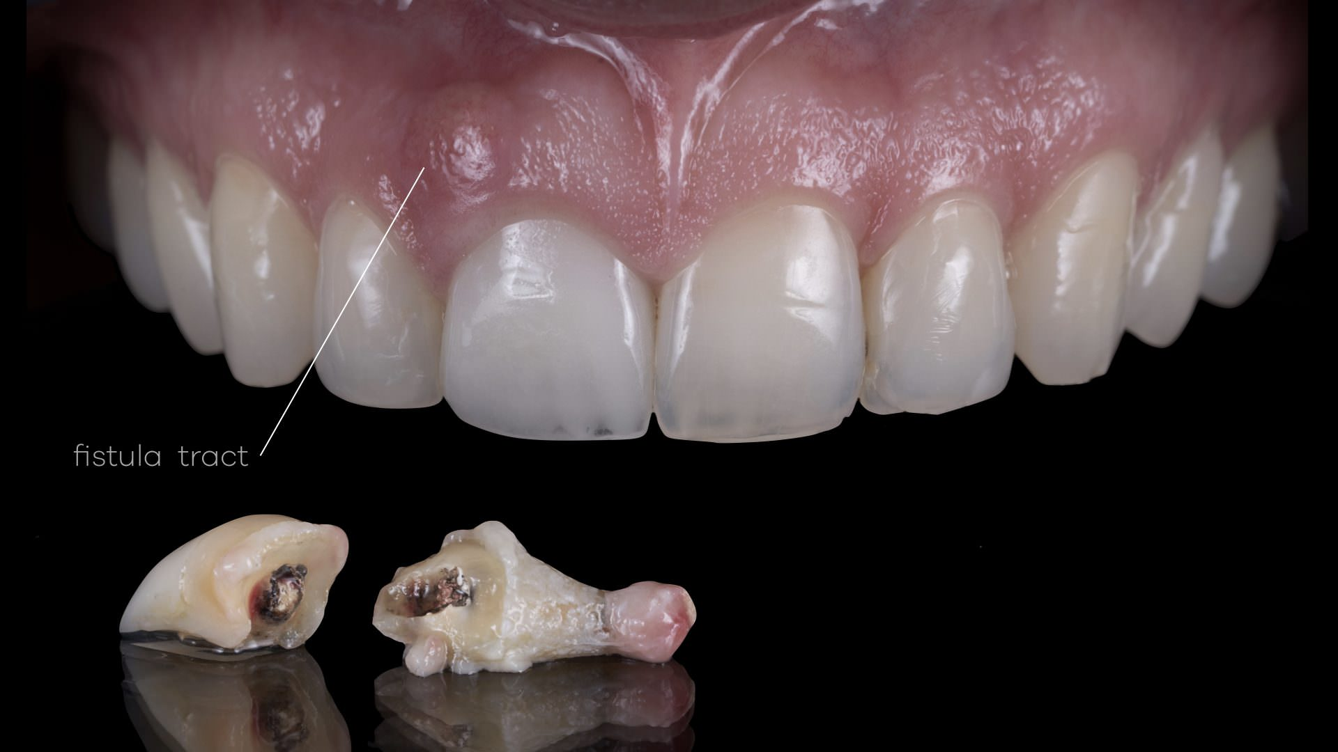 Fractured tooth diagnosis for Nobel Biocare Implant Treatment