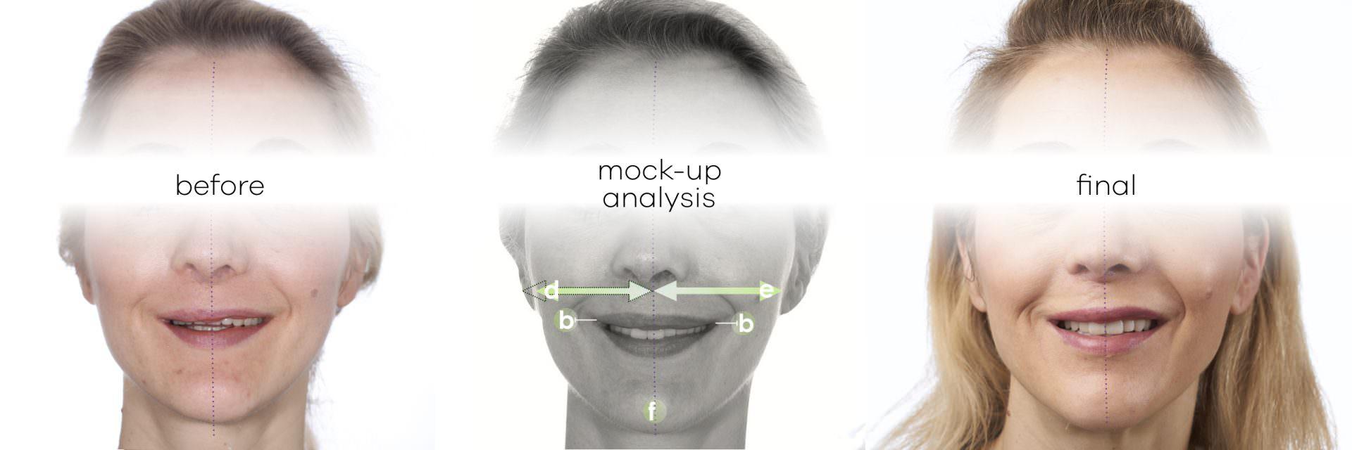 Mock-Up for the Smile Design