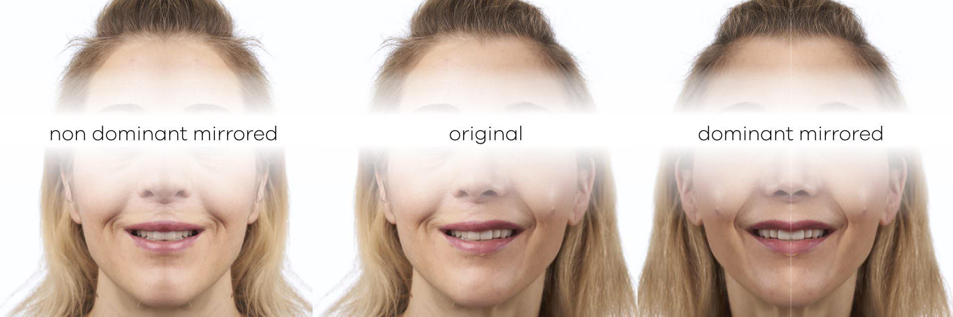 Facial Analysis for Smile Design