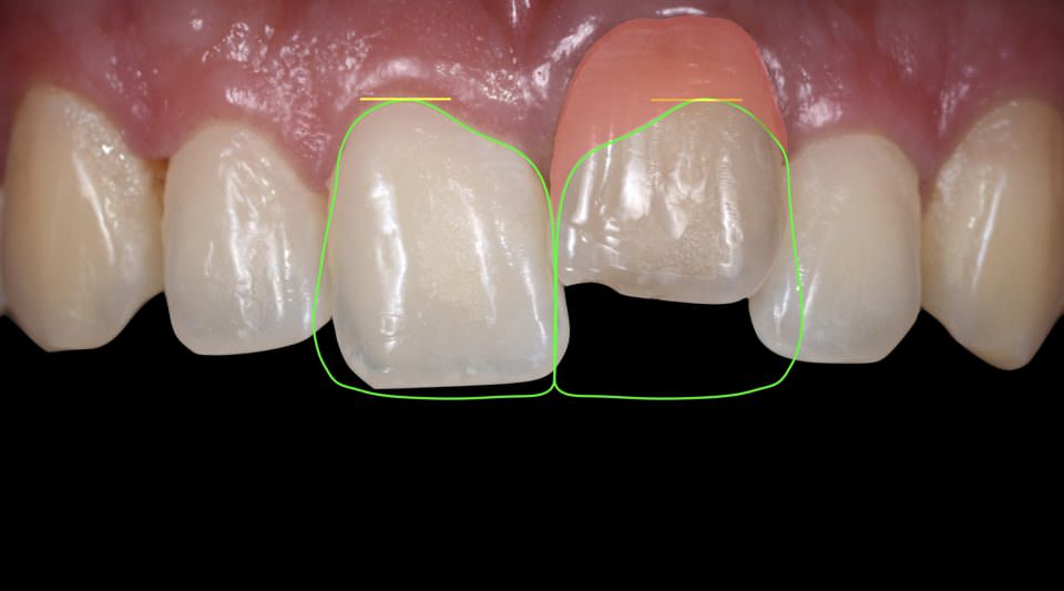 Ankylosed tooth - Minimally Invasive Treatment with a Ceramic Veneer