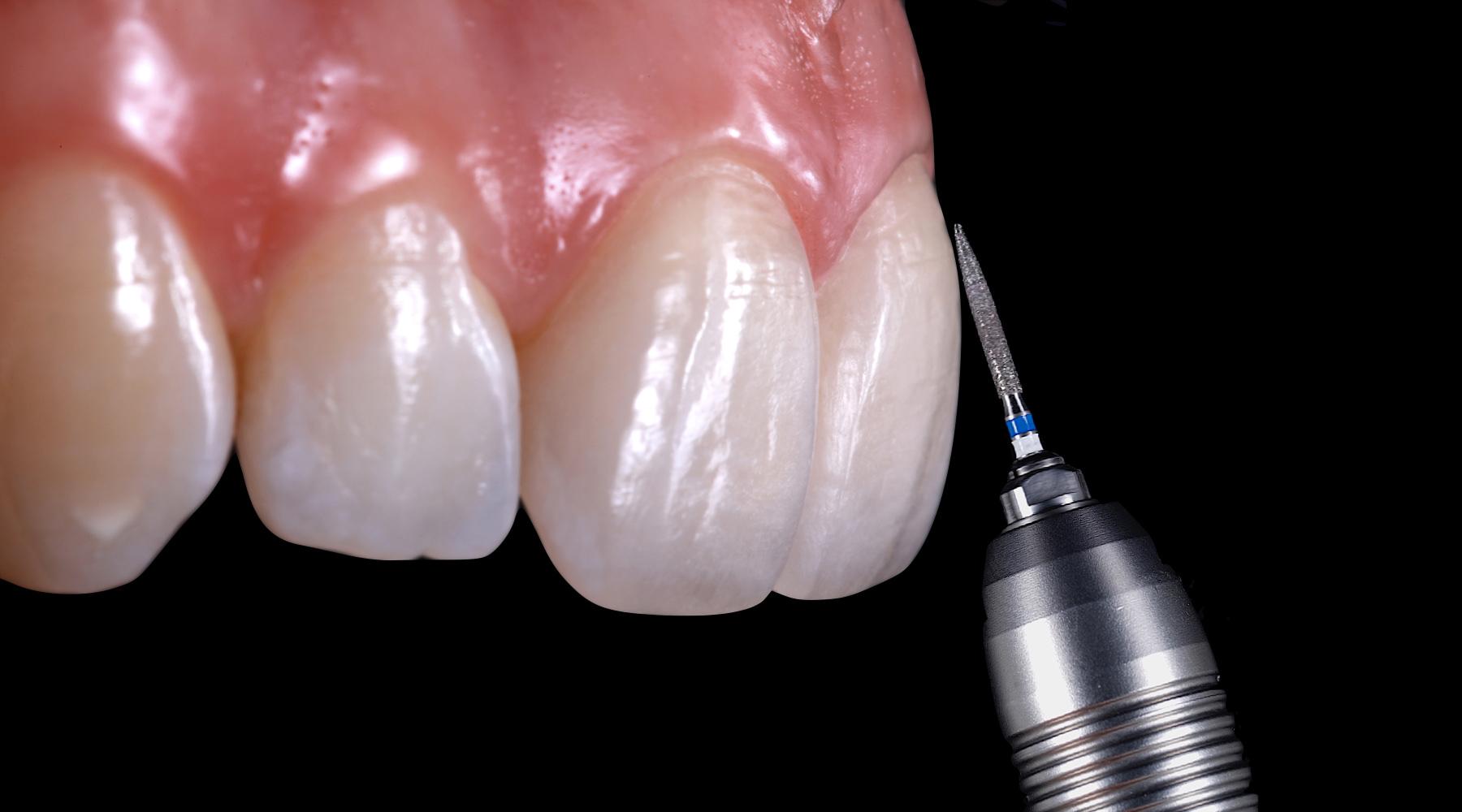 Tooth contour