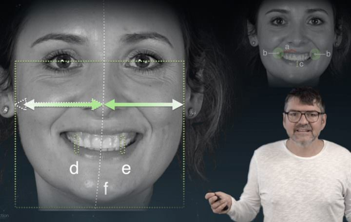 Facial Analysis Tutorial for better Smile Design