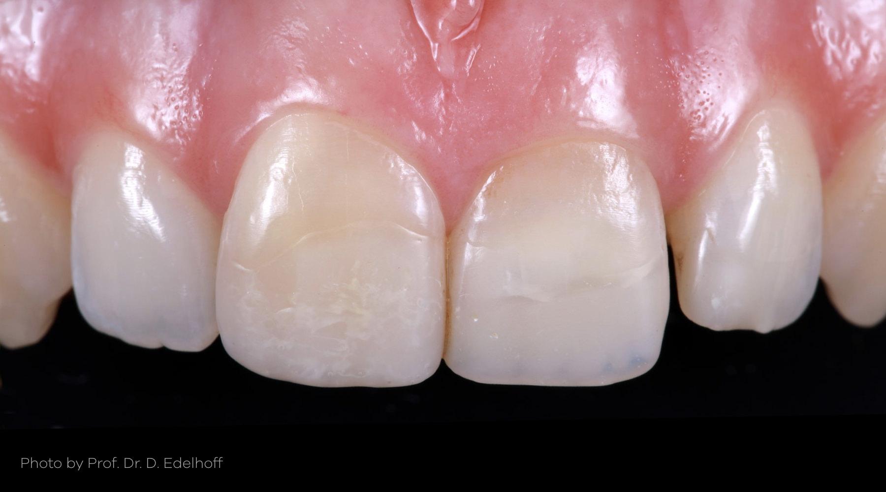 endodontically treated, Otto Prandtner, Rezotto Production