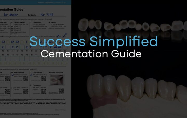 """Artcile picture with the headline """"Success Simplified Cementation Guide"""""""