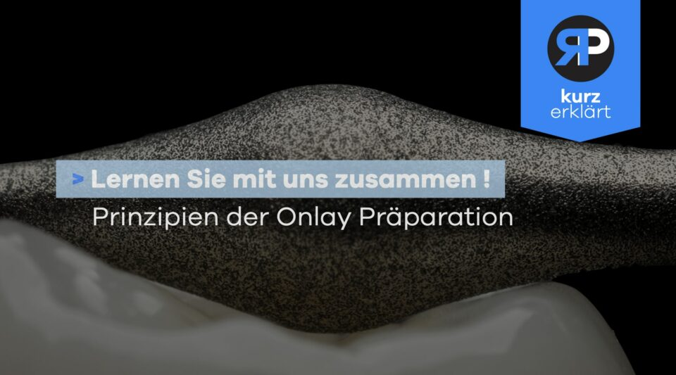 Onlay Präparation