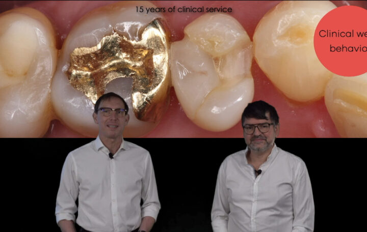 material selection for restorations